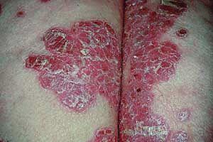 Les cliniques pour le traitement du psoriasis à izraile