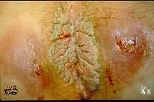 Images de pénis maladies