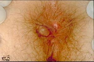 Thrombose anal