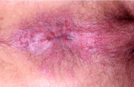 Herpes Around the Anus - www.HemorrhoidsHemroids.com