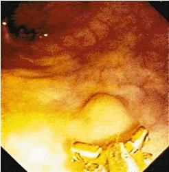 pneumatose kystique colique du rectum proktos